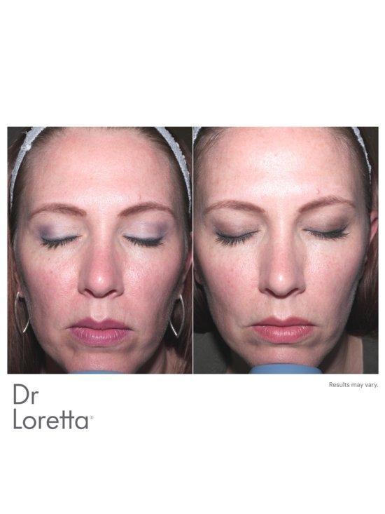 dr loretta anti aging moisturizer3